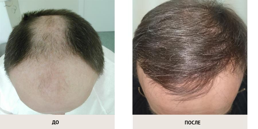 Санкт-петербург пересадка волос